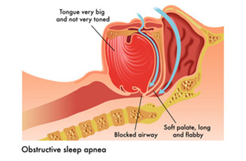 Natural Remedies To Treat Sleep Apnea