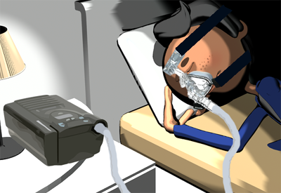 Bipap Machines Benefits And Side Effects Compared To Cpap