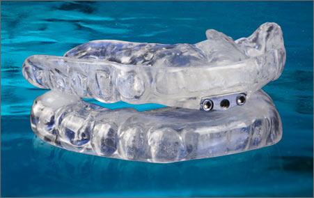 Thornton Adjustable Positioner The Tap Dental Device For