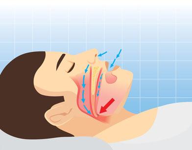 Upper Airway Resistance Syndrome Uars Sleep Apnea Guide