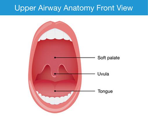 Upper Airway Uvula Uppp