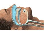 obstruction from sleep apnea