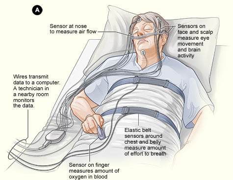 What is a Sleep Study? A Complete Guide to Treating Sleep ...