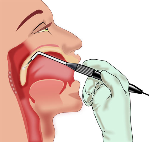 Sleep Apnea Pillar Procedure