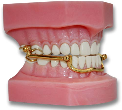 The Best Mandibular Advancement Device For Sleep Apnea And