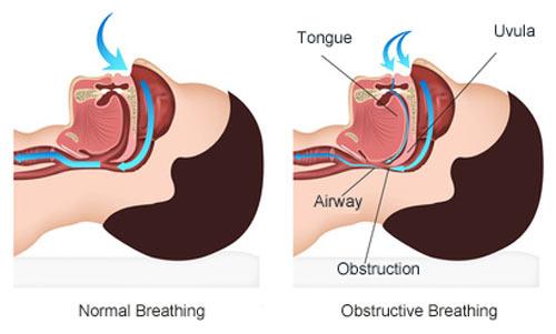 dating with sleep apnea