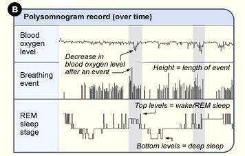 polysomnogram results